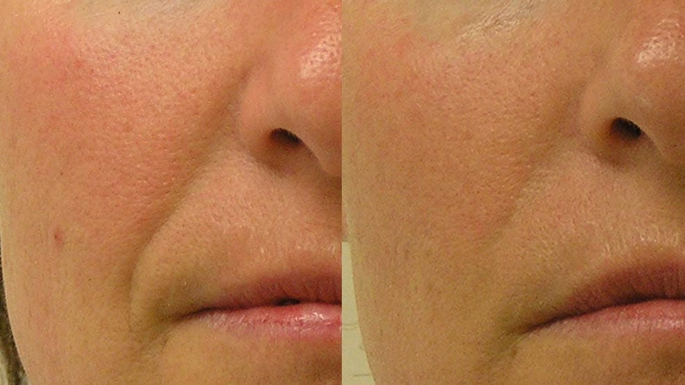 hydrafacial-before-after-5